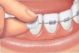 Material de ortodoncista - Psicólogos en Bilbao